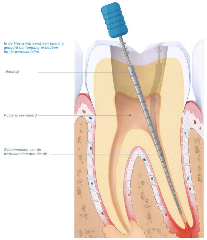 wordt endodontoloog vergoed