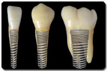 implantaat_diameters