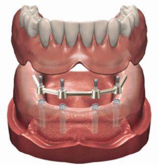 gevoelig tandvlees onder kunstgebit